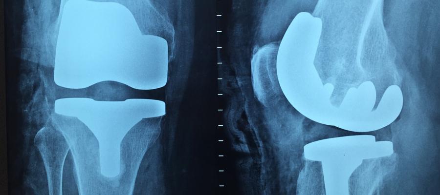 Entrevista com o Ortopedista